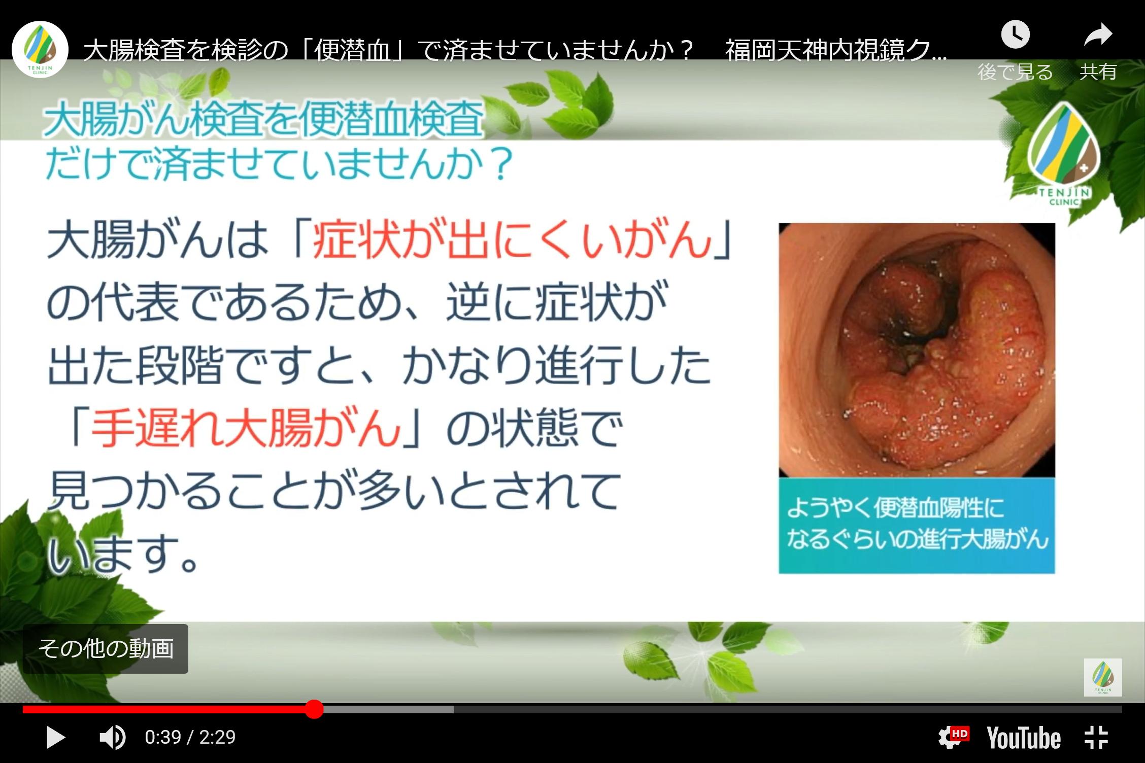 症状 大腸 癌