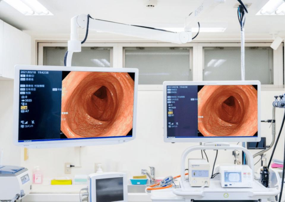 精度の高い内視鏡診断を可能にする ハイビジョンモニターも使用しています