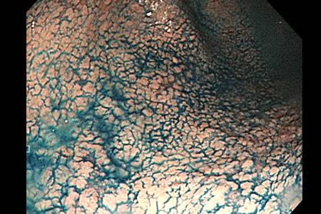 インジゴカルミン特殊染色