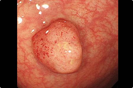 内視鏡的大腸ポリープ切除術・粘膜切除術について