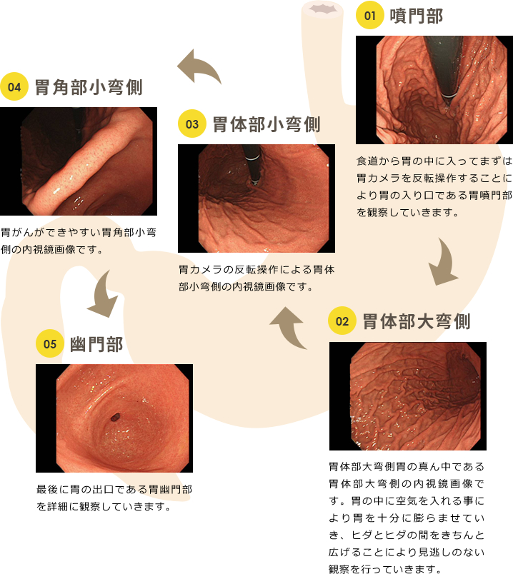 胃と十二指腸のつなぎ目(胃の出口にあたる場所です)