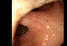 舌の先には口蓋垂という、通称「のどちんこ」と呼ばれる部位が見えてきます。