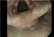 声帯のある喉頭部のNBI観察です。