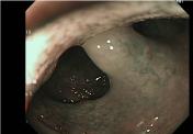 口蓋垂のNBI観察になります。