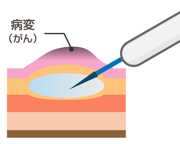 内視鏡的粘膜切除術(EMR:endoscopicmucosal resection)