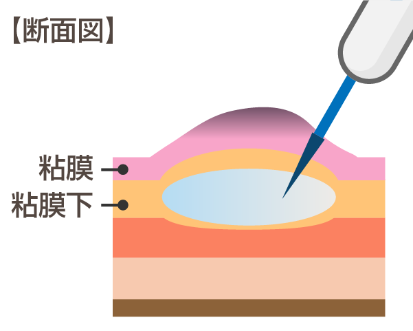 内視鏡的粘膜下層剥離術(ESD:enodoscopic submucosal dissection)